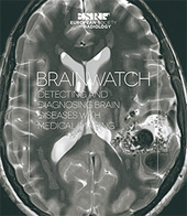 Download the Book on Brain Imaging !!!