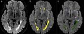 Free Brain MRI Quantification for ESNR members