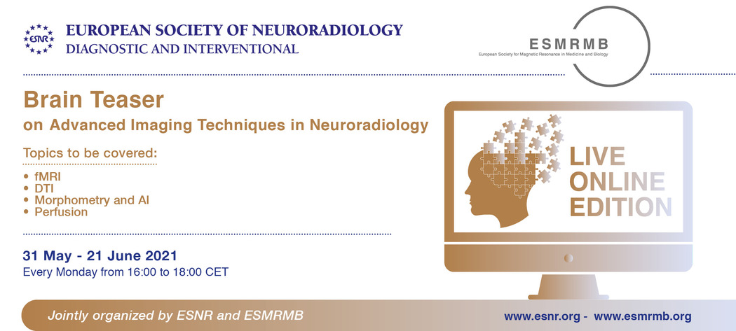 30/04/2021 : Brain Teaser on Advanced Imaging Techniques in Neuroradiology is accredited with 8 CME credits