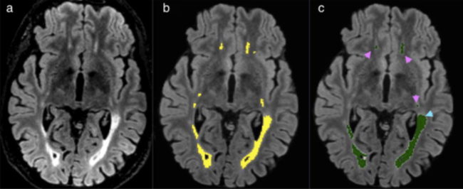 23/03/2016 : Free Brain MRI Quantification for ESNR members